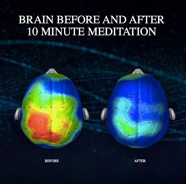 Image of brain before (lots of red, yellow and green) and after (mostly all blue) 10 minute meditation